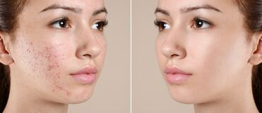 Free Teenage Girl Before And After Acne Treatment On Background Royalty Free Stock Photography - 170106917