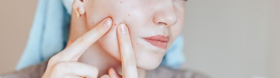 Teenage girl squeezing her pimples, removing pimple from her face. Woman skin care concept photos of ugly problem skin girl on. Beige background long banner stock photos