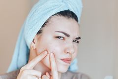 Teenage girl squeezing her pimples, removing pimple from her face. Woman skin care concept photos of ugly problem skin girl on. Beige background royalty free stock image