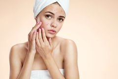 Teenage girl squeezing her pimples, removing pimple from her face.  Woman skin care concept Stock Photo