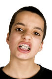 Teenage shows his dental  braces Stock Photos