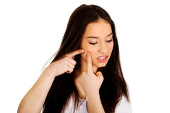 Teenage woman squeezing pimple. Royalty Free Stock Photos
