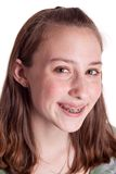 Teenager With Braces Stock Photo