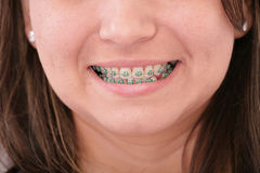 Teenager with braces Stock Photos