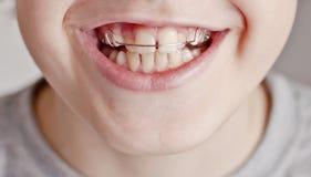 Teenager felice con i ganci Fotografia Stock Libera da Diritti