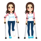 Teenager Girl Crutches. Girl with sad expression and broken leg walking with crutches then happy after recovery Stock Photo