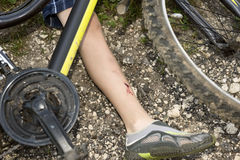 Teenager has fallen from bicycle and was traumatized. Teenager has a leg injury, bicycle lies nearby Royalty Free Stock Photos