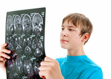 Teenager with x-ray Royalty Free Stock Photos