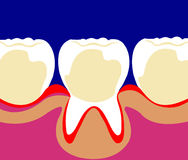 Teeth Royalty Free Stock Photos