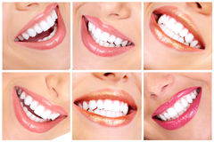 Teeth. Beautiful young woman teeth. Close up Royalty Free Stock Photo