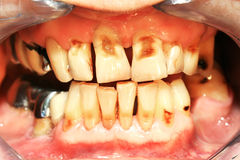 Teeth abrasion. Result of incorrect teeth cleaning stock images