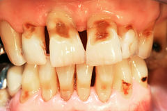 Teeth abrasion. Result of incorrect teeth cleaning stock photos
