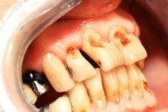 Teeth abrasion. Result of incorrect teeth cleaning royalty free stock photography