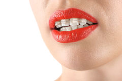 Teeth alignment. Braces. Beautiful woman smiling. Red lips Stock Image