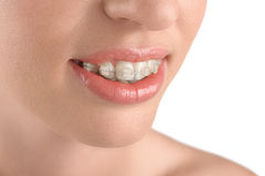 Teeth alignment. Braces. Beautiful woman smiling. Royalty Free Stock Photo