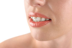 Teeth alignment. Braces. Beautiful woman smiling. royalty free stock images