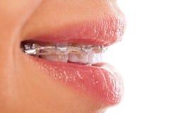 Teeth Stock Image