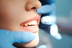 Teeth of a beautiful girl closeup. royalty free stock images