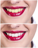 Teeth before and after bleaching treatment Royalty Free Stock Photography