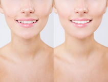 Before and after teeth bleaching or whitening treatment. Close-up of young Caucasian female`s smile. Natural make-. Up Stock Photography