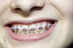 Teeth with braces. Teeth young girl with bracea Royalty Free Stock Images