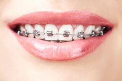 Teeth with braces. Beautiful white teeth with braces Royalty Free Stock Photo