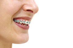 Teeth Braces. Detail of young woman's smile showing white teeth with braces Stock Photography