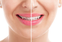 Teeth with braces. Before and after Stock Images