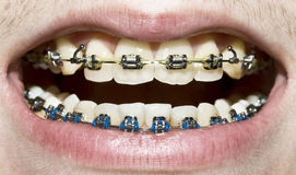 Teeth and braces Royalty Free Stock Photography