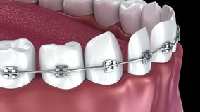 Teeth with braces Alignment process