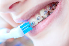 Teeth with braces. Beautiful smiling girl with retainer for teeth brushing teeth Stock Photos