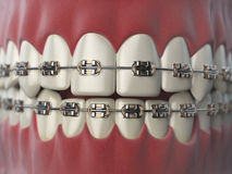 Teeth with braces or brackets in open human mouth. Dental care c Stock Photos