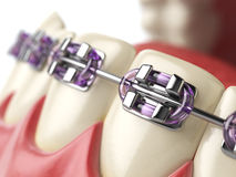Teeth with braces or brackets in open human mouth. Dental care  Stock Image