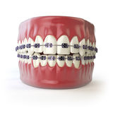 Teeth with braces or brackets  on white. Dental care con Royalty Free Stock Images