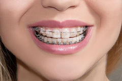 Teeth with braces. Teeth with clear and metal braces Stock Photo