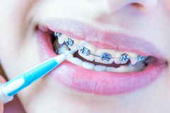 Teeth with braces. Royalty Free Stock Photo