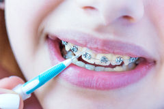 Teeth with braces. Royalty Free Stock Photography