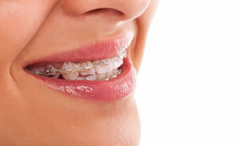 Teeth with braces. Close up isolated Royalty Free Stock Photography