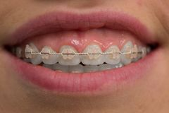 Teeth with braces. Close-up. Macro royalty free stock photography