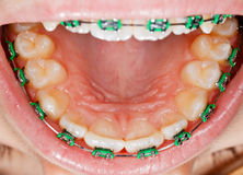 Teeth with braces Royalty Free Stock Photos