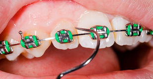 Teeth with braces Stock Images