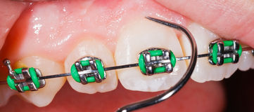 Teeth with braces. Close up photo of teeth with orthodontic braces Stock Photos