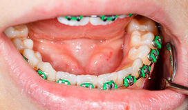 Teeth with braces Stock Photography