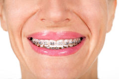 Teeth with braces, close up Stock Image