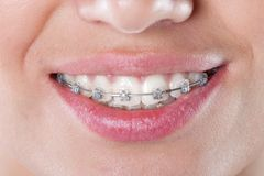 Teeth with braces, close up Royalty Free Stock Photo