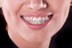 Teeth with braces, close up. Young woman photo Stock Images