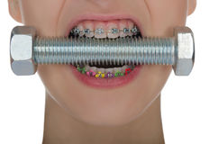 Teeth with braces  compressed metal screw Royalty Free Stock Photos