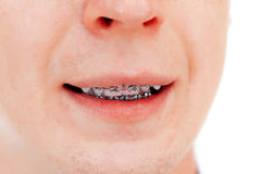Teeth with braces. Isolated Royalty Free Stock Photos