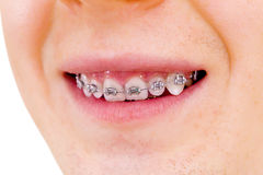 Teeth with braces. Isolated Stock Image
