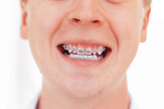 Teeth with braces. Isolated Stock Images